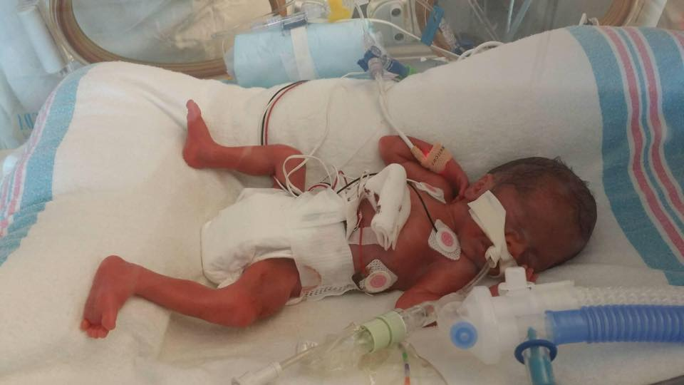 premature babies steroids side effects
