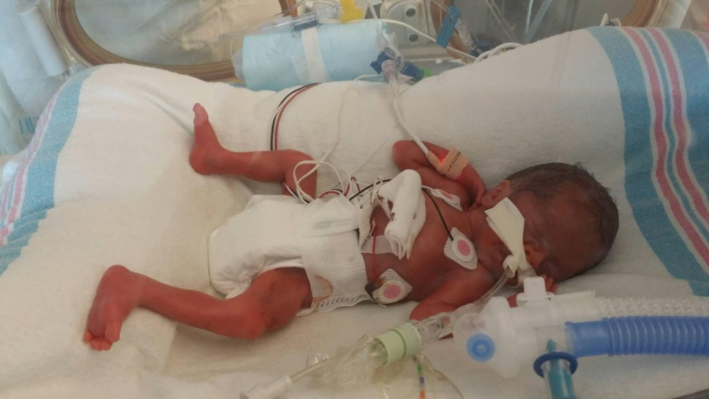 A Letter to Preemie Moms: 10 Things I Learned from Our 165 ...